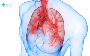 Asthma and Bronchiectasis are more than just a coincidence